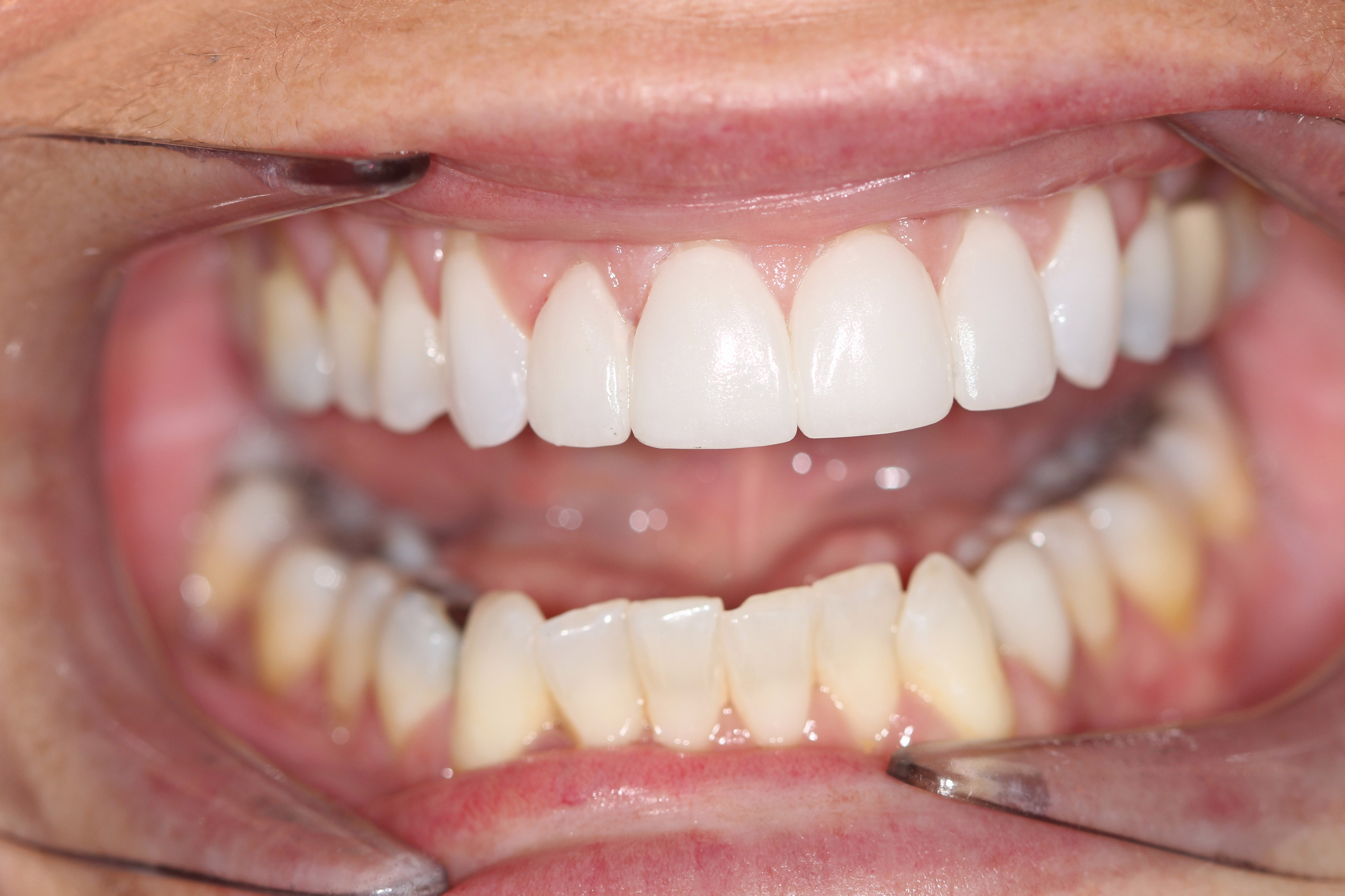 Before and after photo - Connor Family Dentistry in Hendersonville